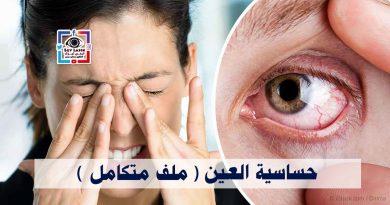 حساسية العين ملف متكامل