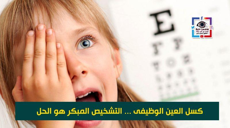 كسل العين الوظيفى ( التشخيص المبكر هو الحل )