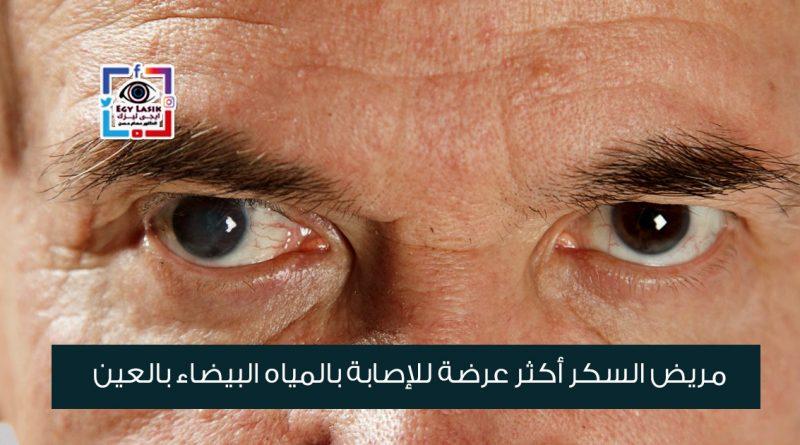 مريض السكر أكثر عرضة للإصابة بالمياه البيضاء بالعين