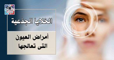 أمل جديد لفاقدى الإبصار ( زراعة الخلايا الجذعية ) وأمراض العيون التى تعالجها