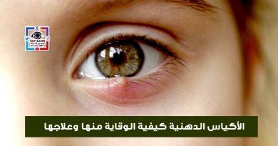 الاكياس الدهنية فى العين وكيفية الوقاية منها وعلاجها
