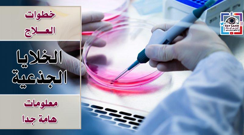 خطوات العلاج بالخلايا الجذعية