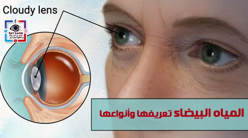 cataract definition