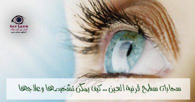 cornea diseases