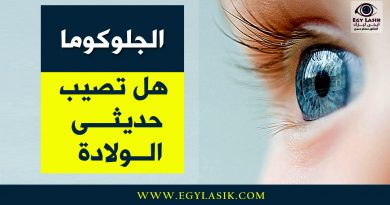 glaucoma in babies