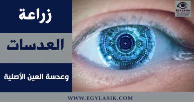 lenses implant cases