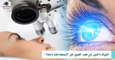 LASER AND LASIK