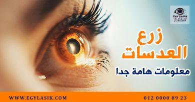 lens-implantation-tips