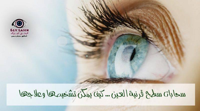 corneal opacity