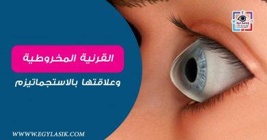 keratoconus-lasik