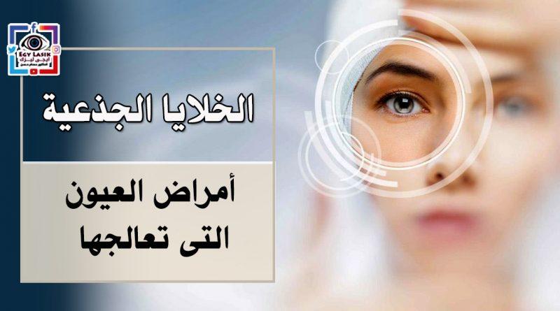 3c5471470 أمل جديد لفاقدى الإبصار ( زراعة الخلايا الجذعية ) وأمراض العيون التى ...
