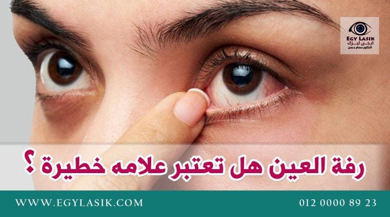 رفة جفن العين هل تعتبر علامه خطيرة تستدعى الذهاب للطبيب Egylasik